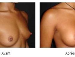 Implant mammaire avant après