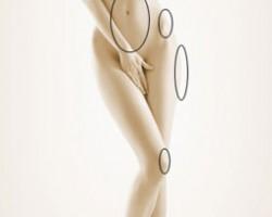 Les bonnes zones de la liposuccion