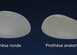 Forme des prothèses