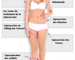Chirurgie Esthétique Marseille