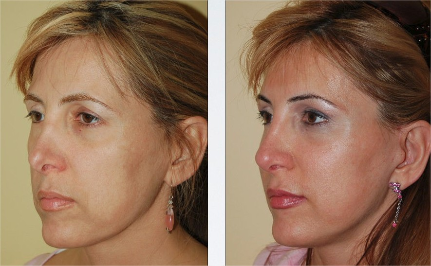 rhinoplastie chirurgie du visage marseille regis courbier. Black Bedroom Furniture Sets. Home Design Ideas