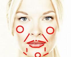 Les zones d'injection acide hyaluronique