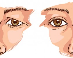 Chirurgie du regard - Blepharoplastie Marseille Illustration