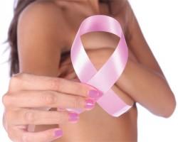 Reconstruction mammaire a marseille