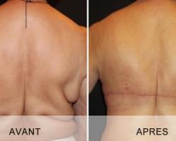 Chirurgie esthétique Marseille - Bodylift