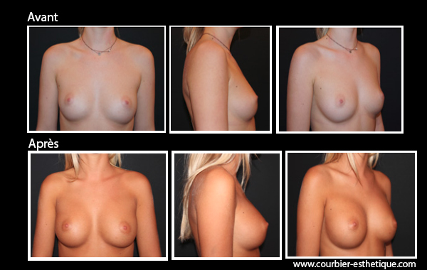 Photo avant-après implant mammaire ç Marseille