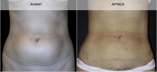 Avant - Après chirurgie de l'abdomen à Marseille