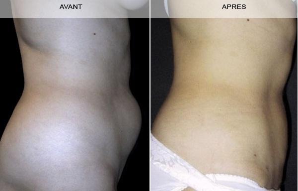 Avant - Après lipectomie abdominale à Marseille