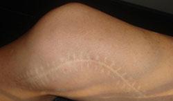 Cicatrice inesthétique à Marseille