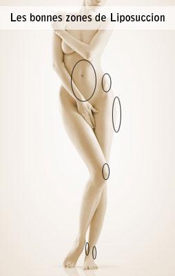 Zones de traitement de la liposuccion à Marseille