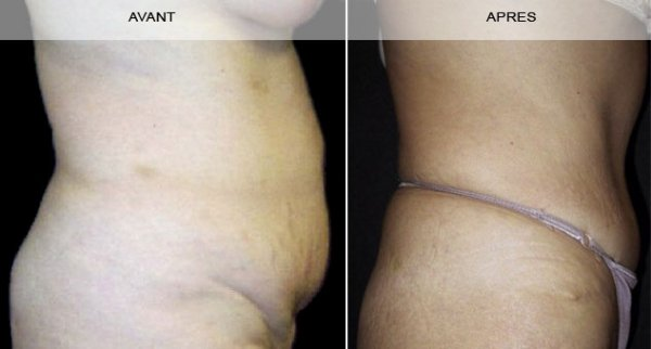 Avant - Après la liposuccion du ventre à Marseille