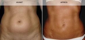 Avant - Après la liposuccion du ventre à Marseille (face)