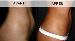 Avant - Après la liposuccion du ventre à Marseille (profil)