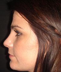 Nez de profil après la rhinoplastie à Marseille