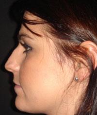 Nez de profil avant la rhinoplastie à Marseille
