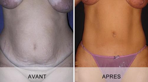 Avant - Après abdominoplastie à Marseille