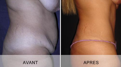 Avant - Après lifting de l'abdomen à Marseille