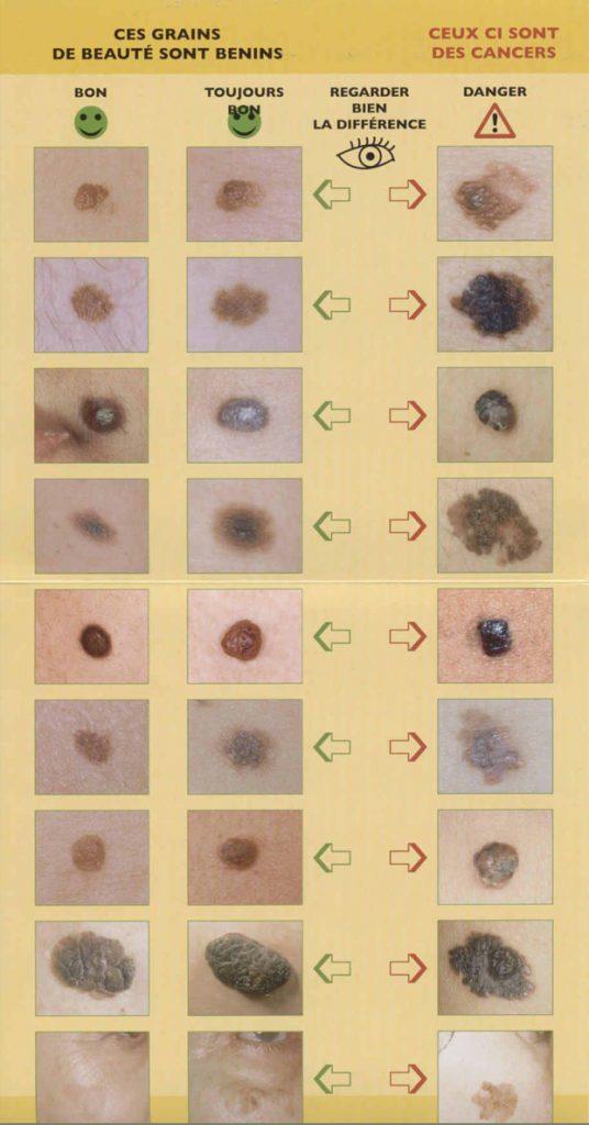 Différence entre grain de beauté normal et dangereux