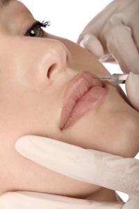 Injections dans les lèvres en médecine esthétique