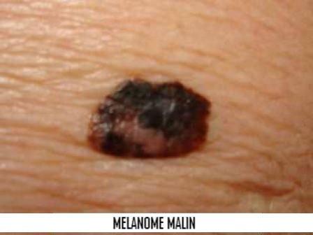 Melanome malin à Marseille