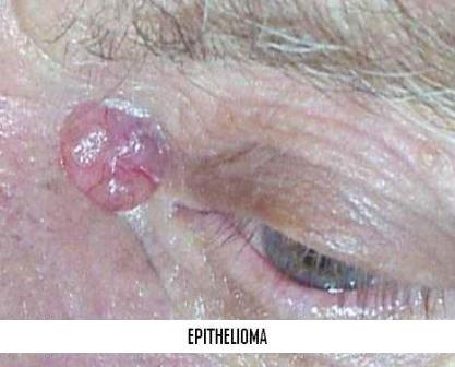 Epithelioma à Marseille