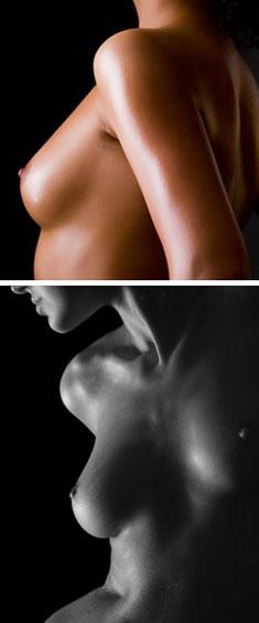 Sein de femme avec prothèses mammaires à Marseille