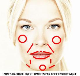 Zones traitées par l'acide hyaluronque à Marseille