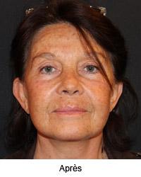 Femme de face après le lifting cervico facial