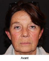 Femme de face avant le lifting cervico facial