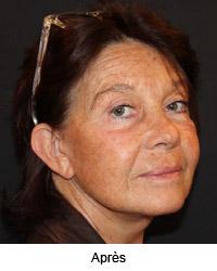 Femme de profil après le lifting cervico facial