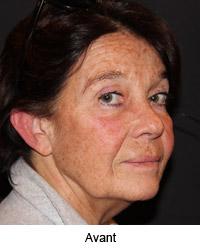 Femme de profil avant le lifting cervico facial
