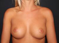 Sein de femme après prothèses mammaires