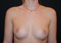 Sein de femme avant prothèses mammaires