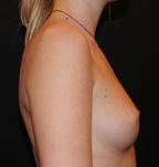 Sein de femme de profil avant prothèses mammaires