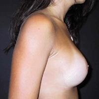 Sein de femme de profil après prothèses mammaires (2)