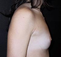 Sein de femme de profil avant prothèses mammaires (2)