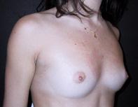 Sein de femme avant prothèses mammaires (3)
