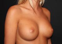 Sein de femme après prothèses mammaires (4)