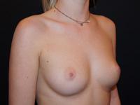 Sein de femme avant prothèses mammaires (4)